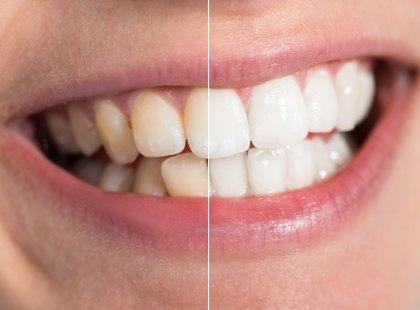 تبييض الأسنان وأنواعه وآثاره الجانبية
