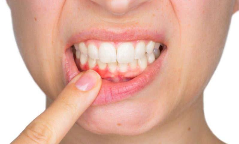 كل ما تريد معرفته حول صحة اللثة و الأسنان