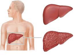 التهاب الكبد (أنواعه ,أسبابه ,اعراضه ,تشخيصه ,علاجه ,مضاعفاته)